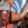 إصابة طفل بجروح خطيرة جراء تعرضه لطلقة قناص حوثي في عيريم لحج