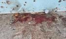 تعز: مليشيا الحوثي تقصف السجن المركزي باكثر من 15 قذيفة كاتيوشا وهوزر وسقوط اكثر من 20 جريح اغلبهم من النساء (صور)