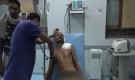 إصابة مواطن برصاص مليشيات الحوثي في مدينة حيس جنوب الحديدة