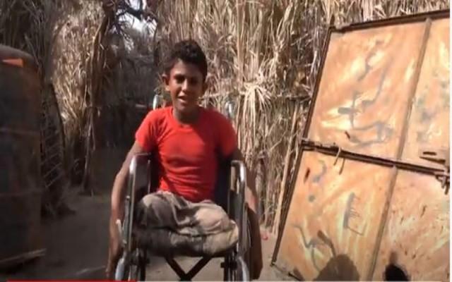 """مأساة الطفل حسن وعائلته.. قذيفة حوثية تبتر قدماه وتقتل والده واثنين من اشقائه """"فيديو"""""""
